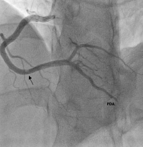 Figure 4. Large clot in the distal right coronary artery (arrowed) and filling defect in posterior descending artery (PDA)