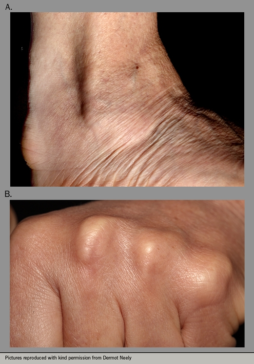 Figure 1. Tendon xanthomata in: panel a) the foot; panel b) the hand