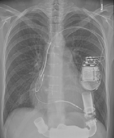 Figure 1. Electric-powered implantable rotary blood pump inserted into the apex of the failing left ventricle. Would the UK taxpayer prefer to see this £120,000 device discarded within weeks (bridge to transplant) or used for years (lifetime therapy)?