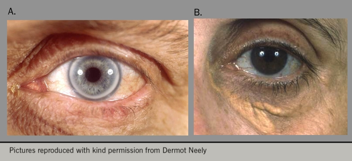Figure 4. showing: panel a) corneal arcus (cholesterol ring in the eye); panel b) under the eye. Xanthelasma represent areas of lipid-laden macrophages and the presence of these is predictive of an increased risk of coronary heart disease, atherosclerosis and mortality
