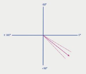 Figure 6. Mean cardiac axis on CT,38.1 ± 7.8° (broken lines demonstratestandard deviation)
