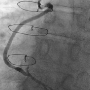 Coronary and bypass graft angiography using a single catheter via the left trans-radial artery