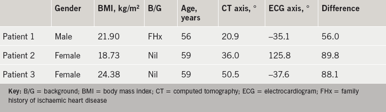 Table 3. Patients with abnormal electrical cardiac axis