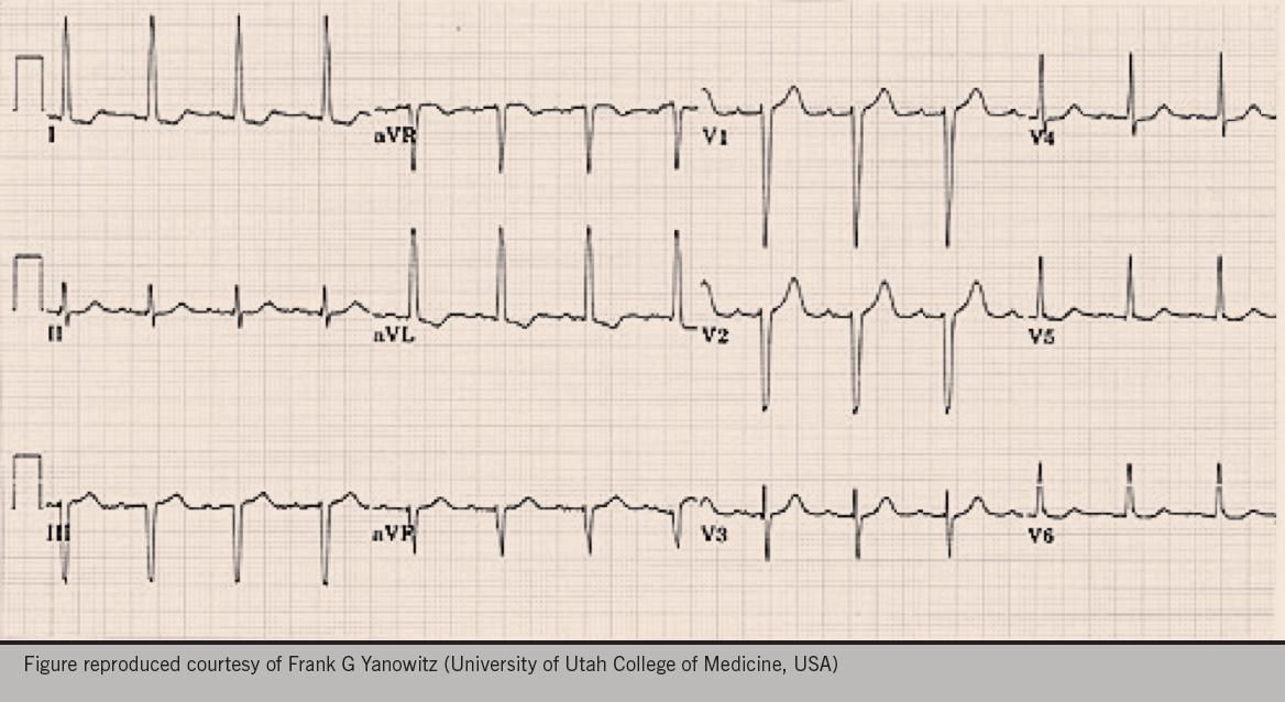 Figure 1. The electrocardiogram obtained during the well-woman check