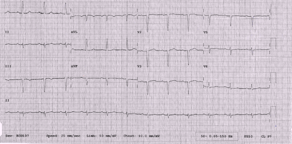 Figure 1. Electrocardiogram (ECG) findings showing Q-waves in antero-septal leads