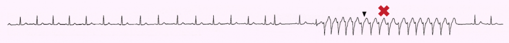 Figure 2. Polymorphic non-sustained ventricular tachycardia was seen on monitoring the patient (X)