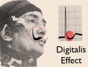Figure 2. For the digitalis 'effect,' remember Salvador Dali