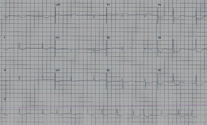 Figure 1. The electrocardiogram obtained during the annual review