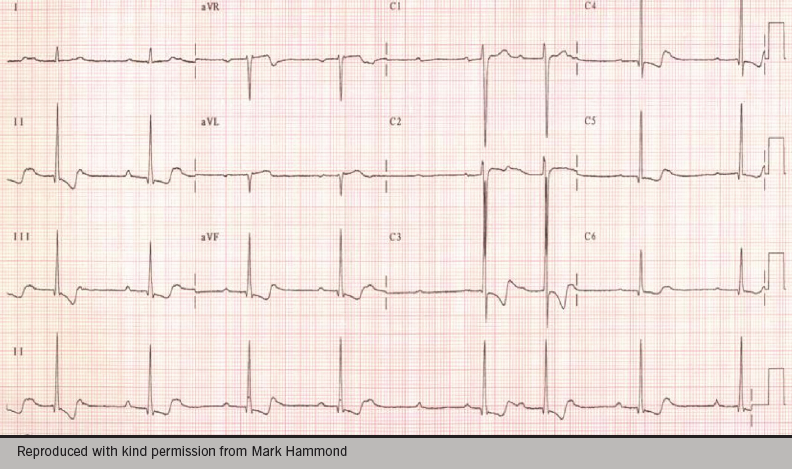 Figure 3. An example of an electrocardiogram obtained after an overdose of digitalis