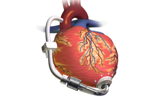 heart failure device