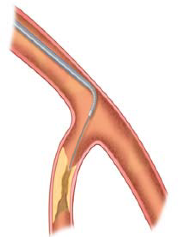 Figure 1. The tip of the Venture™ catheter can be angulated up to 90 degrees to steer the guidewire in the desired direction