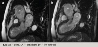 Figure 2. Cardiac magnetic resonance (CMR) TruFisp cine inflow/outflow in systole (a) with 'ballooning' of the left ventricular mid body and apex; (b) diastole