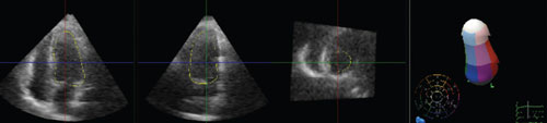 Figure 5. 3D echocardiography studies three months after the initial admission demonstrating full recovery of left ventricular function