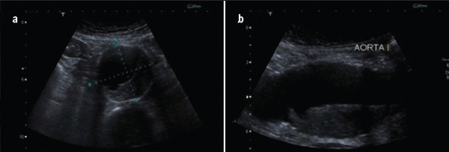 Figure 4. Tansverse (a) and longitudinal (b) ultrasound vies of an abdominal aortic aneurysm