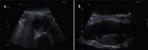 Figure 4. Tansverse (a) and longitudinal (b) ultrasound vies of an abdominal aortic aneurysm