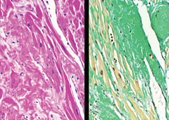 Figure 3. Microscopy of cardiac tissue from autopsy demonstrates amyloid deposition between cardiac myocytes as homogeneous light pink material (left). Sulfated Alcian blue staining shows extensive amyloid deposition as green amorphous material (right)