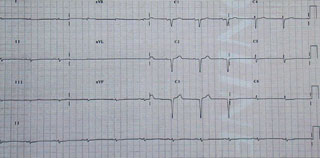 Figure 1. A 12-lead electrocardiogram in a patient with extensive AL amyloid heart disease illustrating the very low voltage limb lead complexes and Q-waves in the anterior chest leads. Note that the patient remains in sinus rhythm despite the extent of involvement