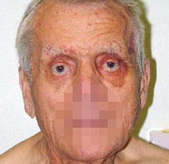 Figure 4. Peri-orbital haemorrhage (raccoon or panda eyes) occurring spontaneously is one of the classic stigmata of AL amyloidosis