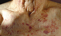 Figure 5. Petechiae over the front of the chest in an elderly patient with advanced AL amyloidosis