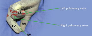 Figure 2. Posterior view: the left atrium and pulmonary veins
