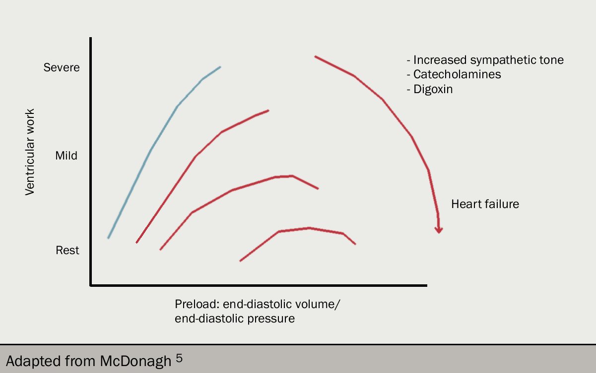 Figure 9 redraw. Starling's law of the heart. In the normal heart (blue), ventricular work increases as a function of preload. The horizontal lines show the ventricular work required at rest, then for mild and finally severe exertion. With increasing severity of heart failure (brown lines), a greater preload is needed for a given level of activity. Note the 'descending limb' of the Starling curve for patients with severe heart failure: the implication is that a reduction in preload might (paradoxically) increase ventricular work