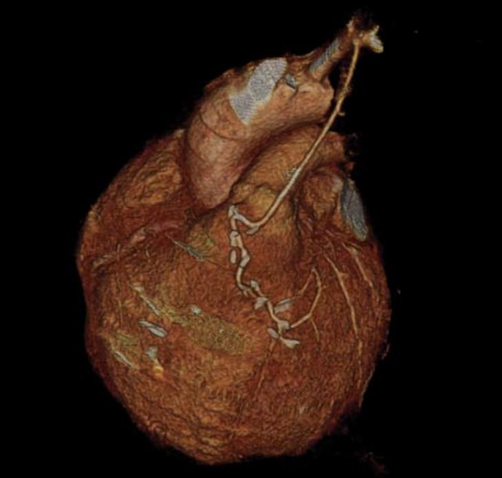 Figure 2. Volume-rendered image of left internal mammary artery graft to distal left anterior descending coronary artery