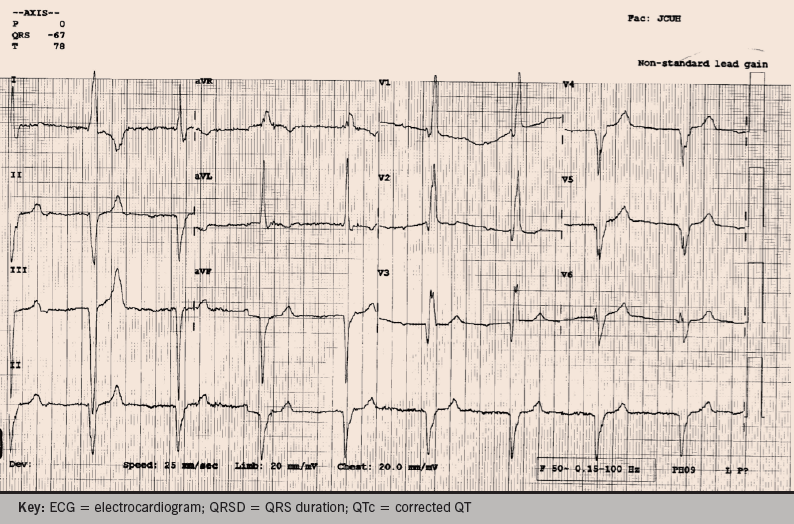 Figure 1. ECG presented to you by practice nurse. Rate = 52; PR = 244; QRSD = 158; QT = 480; QTc = 447. Axis: P = 0; QRS = –67; T = 78