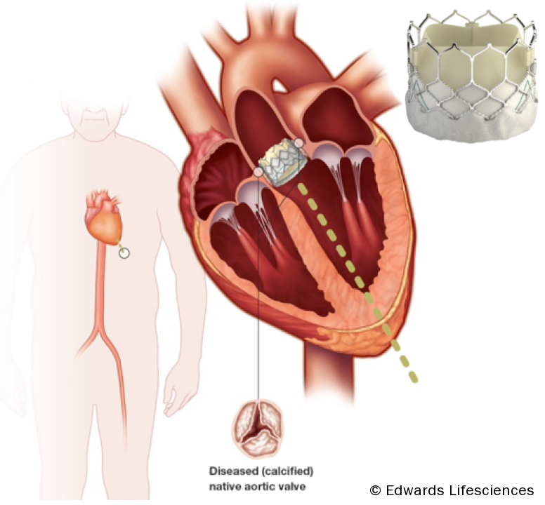 Figure 1. Transcatheter aortic valve replacement devices. Edwards SAPIEN transcatheter heart valve, RetroFlex 3 delivery system and Ascendra balloon catheter delivery system
