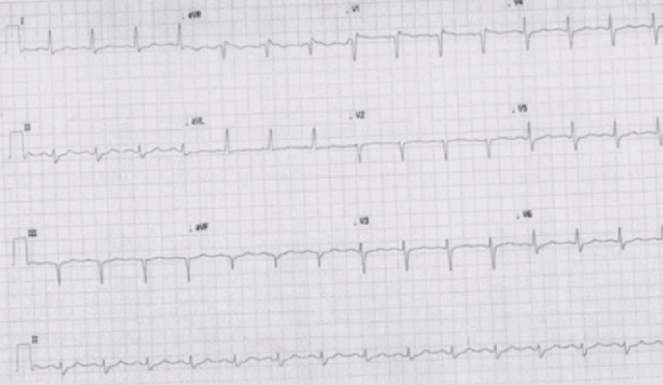 Figure 1. Electrocardiogram (ECG) showing normal sinus rhythm with a partial right bundle branch block, QRS duration 119 ms, and poor R-wave progression