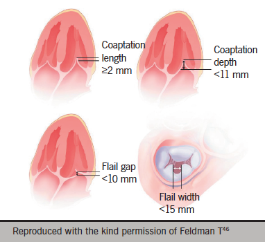 Figure 2. EVEREST II (Endovascular Valve Edge-to-Edge REpair Study) trial anatomic eligibility criteria. These criteria describe characteristics to ensure sufficient leaflet tissue for mechanical coaptation when the MitraClip® device is used. The coaptation length must be at least 2 mm. Coaptation depth must be <11 mm. If a flail leaflet exists, the flail gap must be ≤10 mm, and the flail width must be ≤15 mm