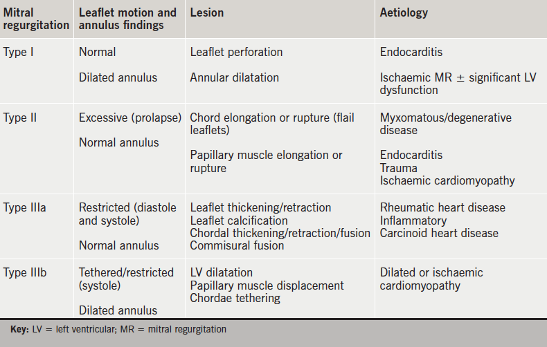 Table 1. Carpentier classification of mitral regurgitation. This functional classification originally described by Carpentier is based on the surgical aim to restore normal valve function rather than normal valve anatomy. It is categorised by the opening and closing motion of the mitral valve leaflets. The lesion abnormalities and aetiologies in relation to this classification are described. It should be noted that more than one Carpentier type may co-exist in any one individual