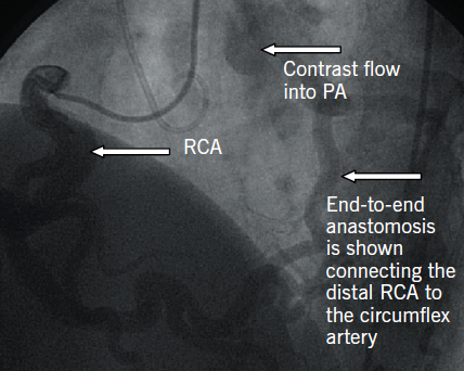 Figure 1. Diagnostic coronary angiogram via right femoral artery illustrating the presence of a large tortuous right coronary artery (RCA) with collaterals filling the left coronary arterial system (LCA) and retrograde flow of contrast within the main pulmonary artery (PA)