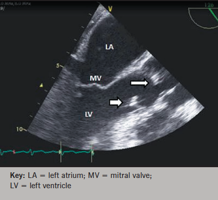 Figure 5. Transoesophageal echocardiogram showing vegetations on the aortic valve (thin, long arrow) and the mural wall (thick, short arrow)