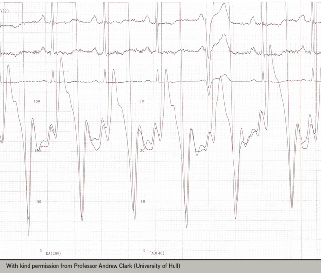 """Figure 1. Simultaneous right- and left-heart catheterisation demonstrating the """"dip and plateau"""" pattern a patient with constrictive pericarditis"""