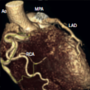 Anomalous origin of the left coronary artery from the pulmonary artery: case report and review