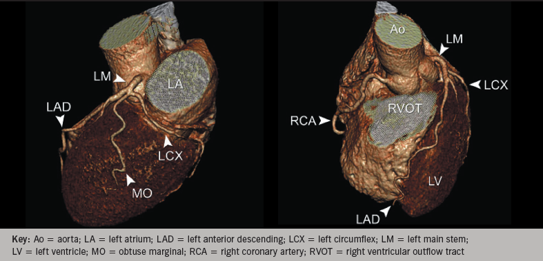 Figure 3. Three-dimensional reconstruction of coronary arteries