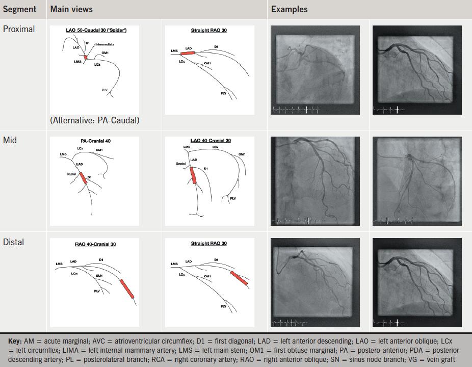 Grossman Cardiac Catheterization 8th Edition Pdf