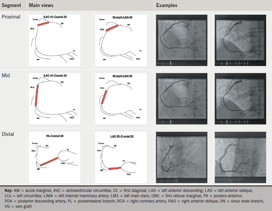 Optimal Angiographic Views For Invasive Coronary Angiography A