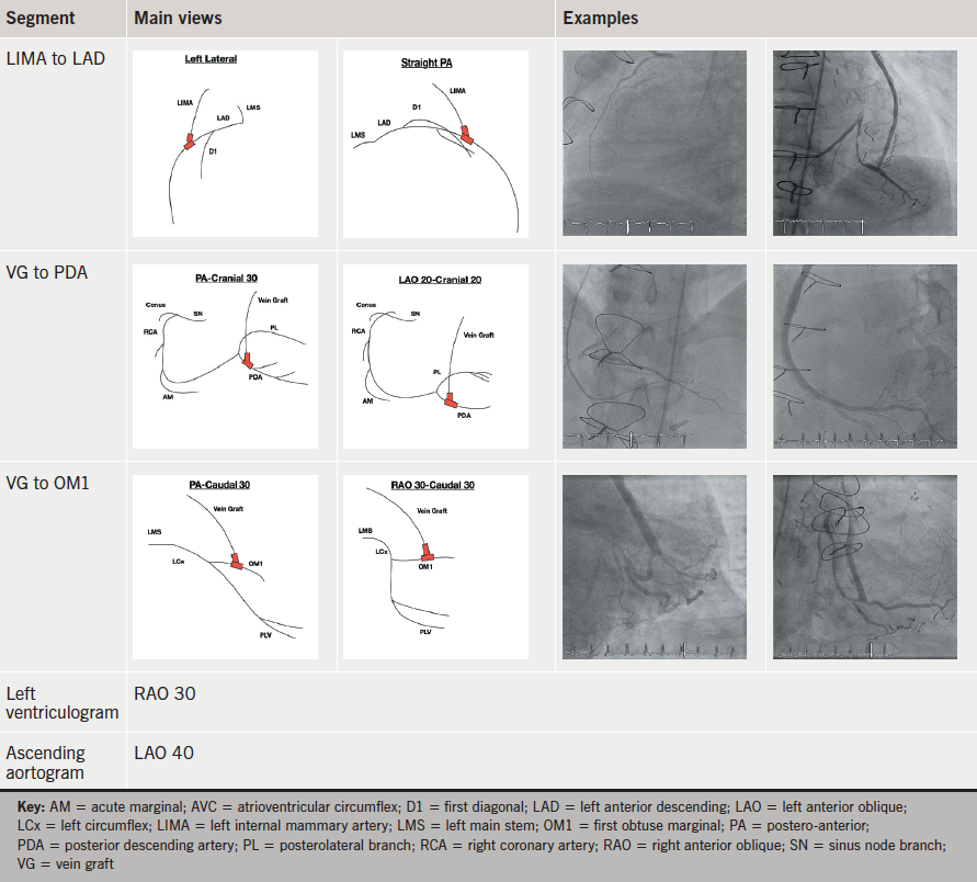 Table 4b. Common angiographic projections for left anterior descending8