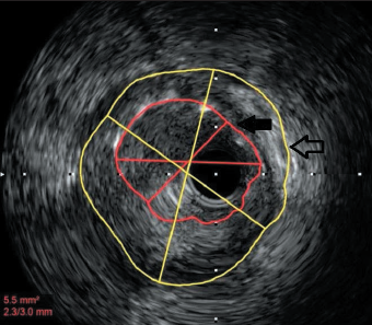 Figure 1. Intravascular ultrasound (IVUS) image showing gross malapposition between the original stent (black arrow) and the vessel wall (transparent arrow)