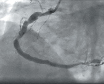Figure 3. OCT image showing complete discontinuity of stent struts suggestive of stent fracture Figure 4. Angiogram showing the final result after treating vessel with a drugeluting balloon