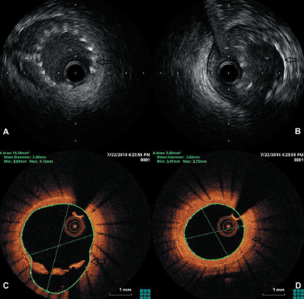 Figure 1. A. Intravascular ultrasound (IVUS) showing a well-apposed stent in the first diagonal (D1) B. IVUS showing cup of Sideguard® slightly protruding into left anterior descending (LAD) (arrow) C. Optical coherence tomography (OCT) showing a well-endothelialised stent in the D1 D. OCT showing a migrated and well-endothelialised stent in the LAD