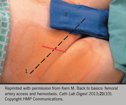 Figure 1. Landmarks for the femoral artery: 1. Iliac crest; 2. symphasis pubis. Dotted line is the path of the inguinal ligament and the red line represents the path of the femoral artery. The inguinal crease may or may not be directly over the ligament