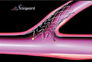 Figure 2. Sideguard® stent