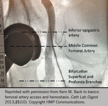 Figure 2. Femoral angiogram showing the femoral artery and branches. Dotted lines indicate the inferior epigastric artery, common femoral artery and its bifurcation
