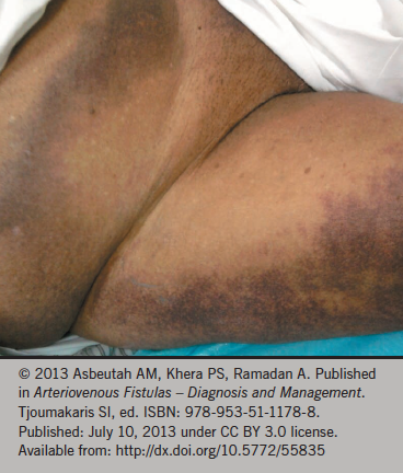 Figure 3. Bruising after femoral access for coronary intervention