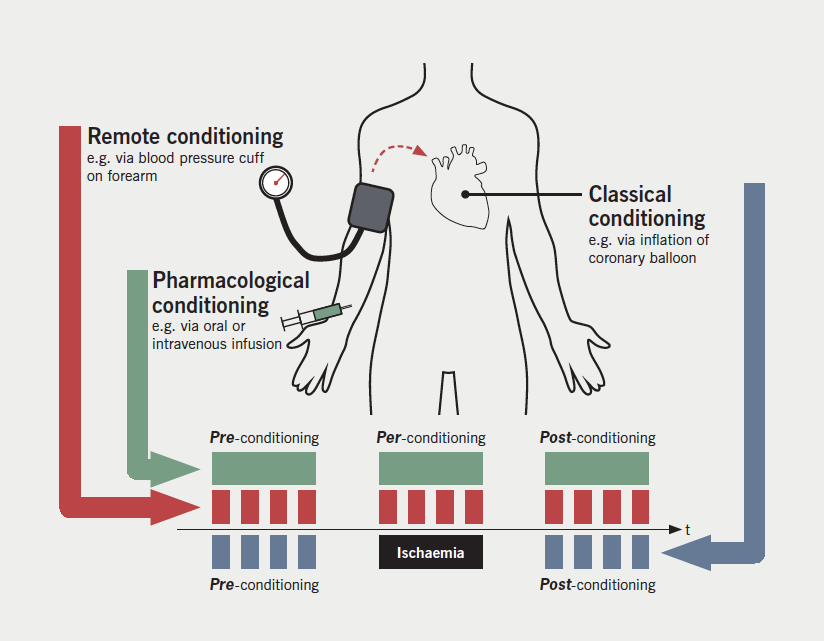 Figure 1. The various forms of conditioning – ischaemic, remote and pharmacological – and the terminology relative to the onset of injurious ischaemia and subsequent reperfusion. Modalities applied prior to injurious ischaemia are termed 'pre-conditioning'. A modality applied during the ischaemic injury is 'per-conditioning'. Any modality applied following the restoration of blood flow and reperfusion is regarded as 'post-conditioning'