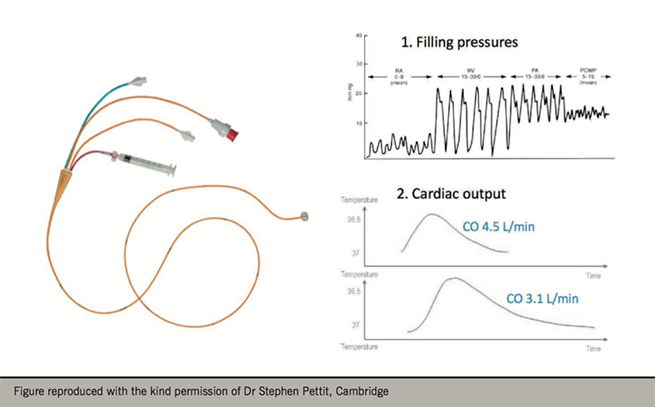Figure 1. Pulmonary artery catheter and haemodynamic data resulting from its use