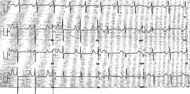 Figure 1. Electrocardiogram demonstrating deep T-wave inversion in leads 1, aVL, and V2 through to V6