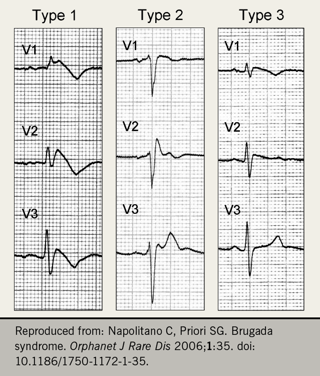 Ahmad - Figure 2. ECG patterns typical of Brugada syndrome